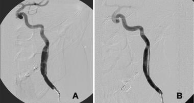 A, Guidewire injury that resulted in a subadventi