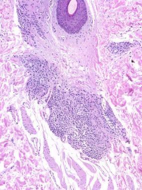 Histopathologically, a congenital nevus differs fr