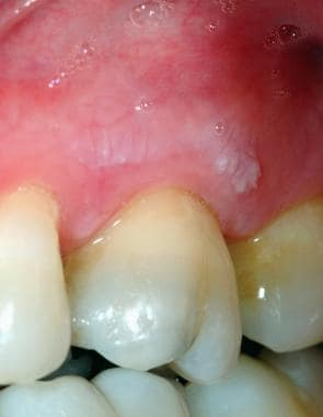 Oral Frictional Hyperkeratosis Clinical Presentation ...
