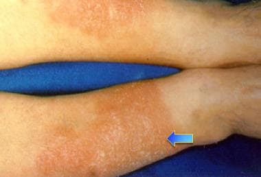 Bilateral erythematous infiltrative plaques on low