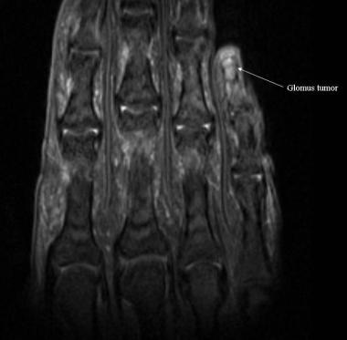 Intraosseous glomus tumor appears as a bright, wel
