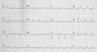 AV dyssynchrony resulting from severe PR interval