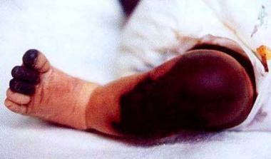 A patient with neonatal purpura fulminans.
