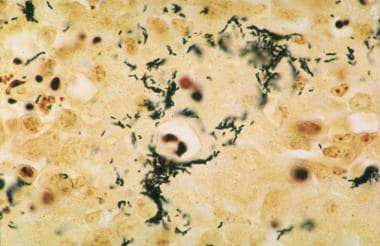 Warthin-Starry stained sections of lymph node show