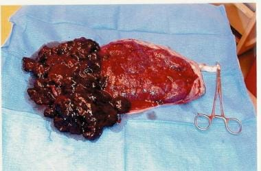Placental abruption seen after delivery.