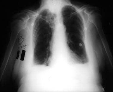 Anteroposterior, upright chest radiograph shows bi