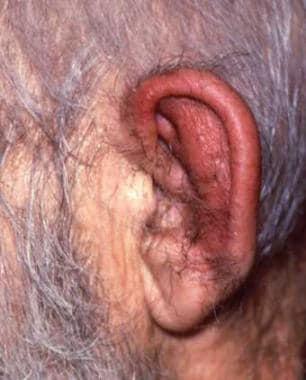 Auricular edema and erythema sparing the lobule. C