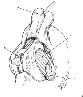 Surgical aspects of septal perforation. Exposure o