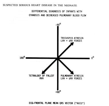 Use of electrocardiographic mean QRS vector (axis)
