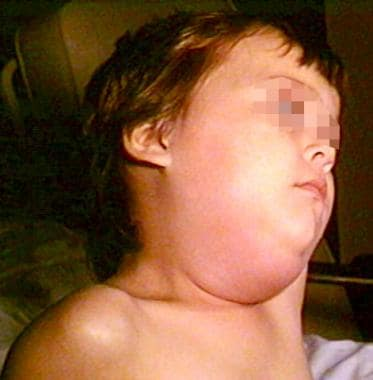Child with mumps.