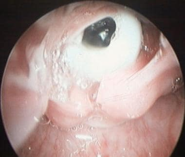 A glottic endoscopic view of the top of Aboulker s