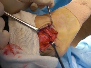 Brostrom-Gould repair. Excision of avulsed fibular