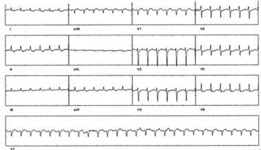 Supraventricular tachycardia (SVT) in patient with