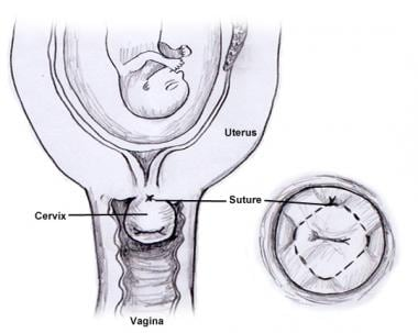 Cervical cerclage.