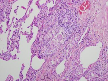 A case of hypersensitivity pneumonitis in a 48-yea