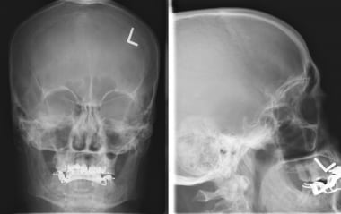 Frontal skull radiograph illustrates a calcified m