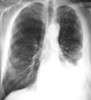 Case 4. A 67-year-old man with a history of occupa
