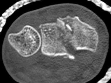 Axial computed tomography (CT) scan demonstrates a