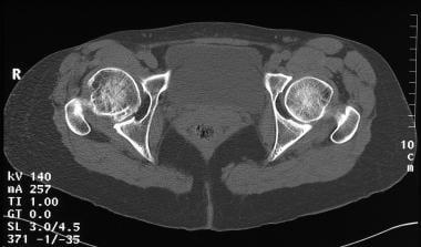 Legg-Calvé-Perthes disease. Axial nonenhanced CT s