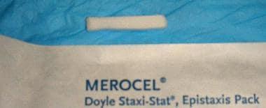 Smaller Merocel epistaxis pack.