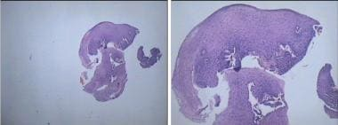 Biopsy shows moderate epithelial hyperplasia with