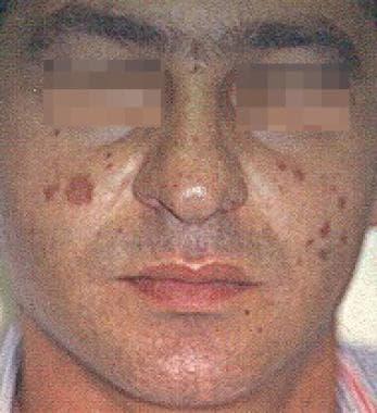 Granuloma faciale.