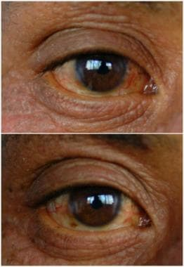 One half of patients have bilateral conjunctivitis