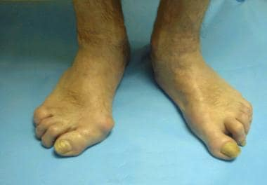 Rheumatoid arthritis. Note greater deformity of ri