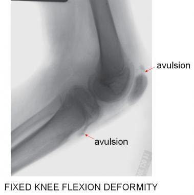 The lateral radiograph best demonstrates the open