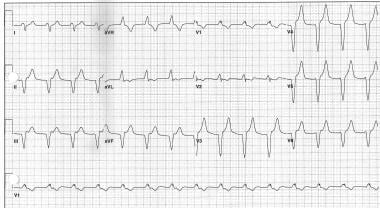 Accelerated idioventricular rhythm with retrograde