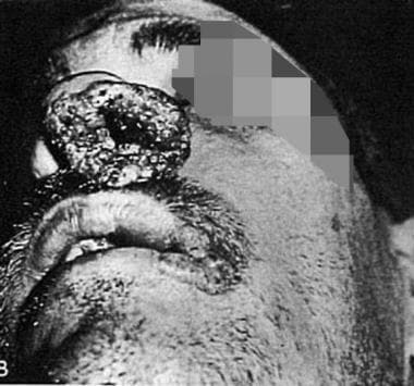 Granulomatous lesion involving the nose in patient