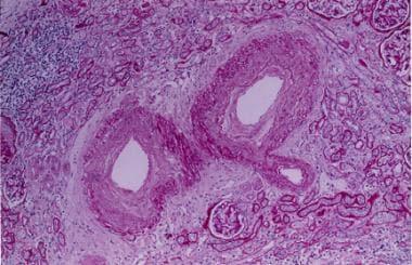 Nephrosclerosis. Fibrointimal proliferation of the