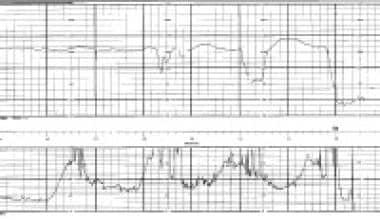 Fetal tracing with placental abruption. Decreased