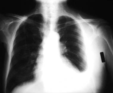 Posteroanterior, upright chest radiograph shows is