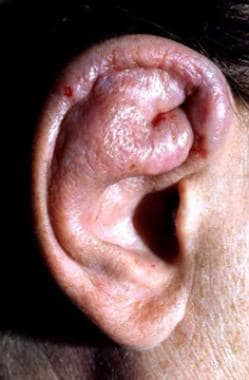 Severe auricular edema and inflammation. Courtesy