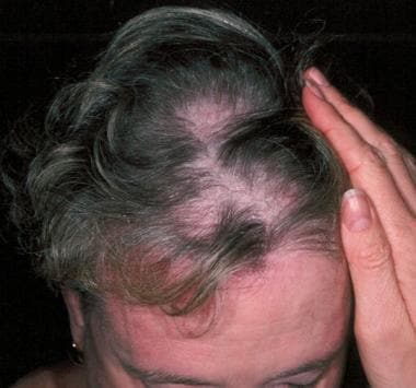 Diffuse alopecia with scaly scalp dermatosis is co