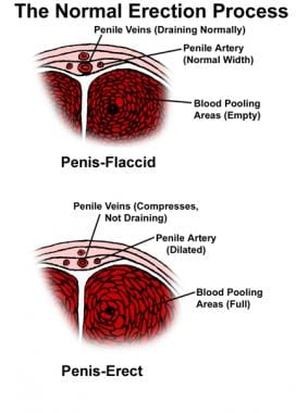 These images depict penile anatomy. Note the sinus