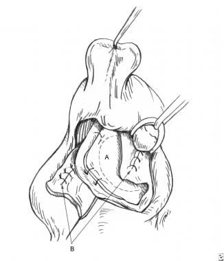 Surgical aspects of septal perforation. Bilateral