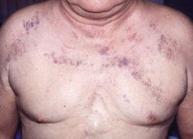 Superior vena cava syndrome in a 63-year-old man w