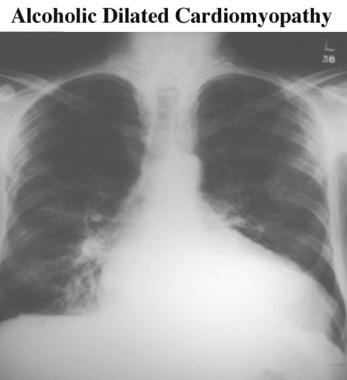 Chest radiograph shows a large heart. Image does n