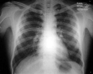 Chest radiograph reveals calcified hilar tuberculo