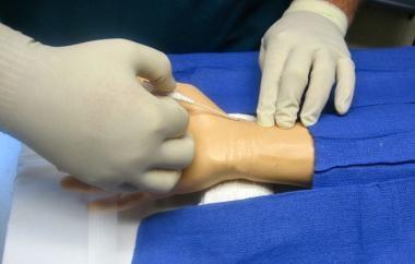 Radial artery cannulation (catheter over needle).