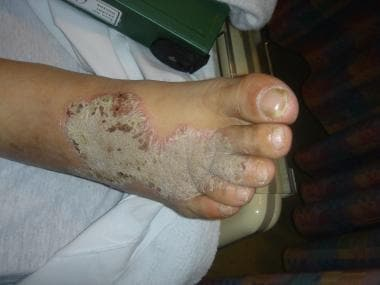 Plaque of necrolytic acral erythema on the ankle o