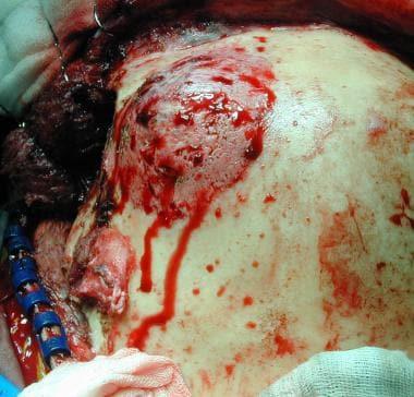 Case 2: Intraoperative view shows the skull involv