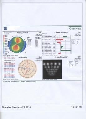 Normal astigmatism pattern with corneal topography