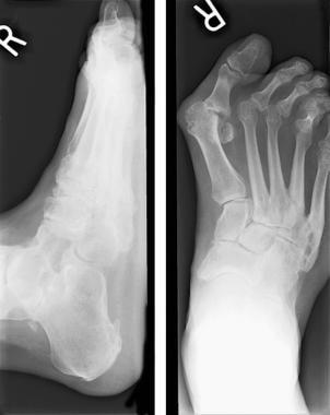 Rheumatoid arthritis. Note lateral deviation of ha