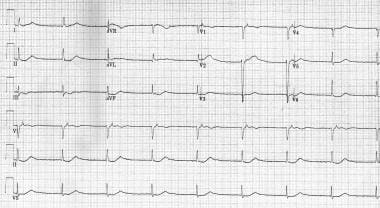Junctional rhythm with retrogradely conducted P wa