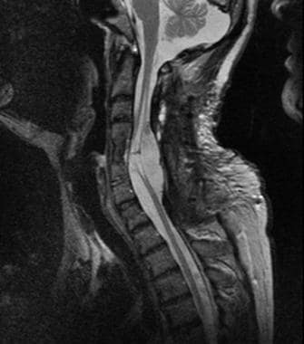 T2-weighted magnetic resonance imaging (MRI) scan