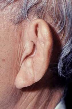 Forward listing ear. Courtesy of the University of