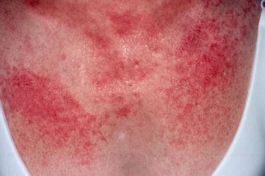 Dermatomyositis is often associated with a poikilo